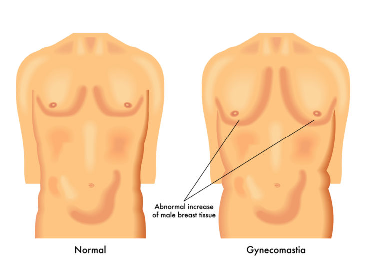 The primary cause for man boobs is hormone imbalance – testosterone and  estrogen. While testosterone is the primary hormone in men, there is always  a ...